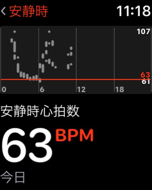 アップルウォッチと血圧とsuica